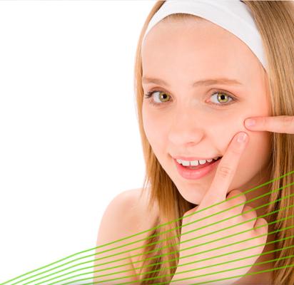 ANce-tratmientos-clinica-del-acne-1