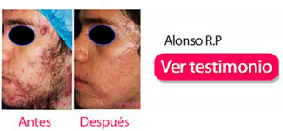 testimonios-clinica-acne-dermosalud-alonso