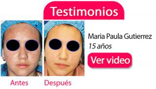 testimonios-clinica-acne-dermosalud-maria-paula