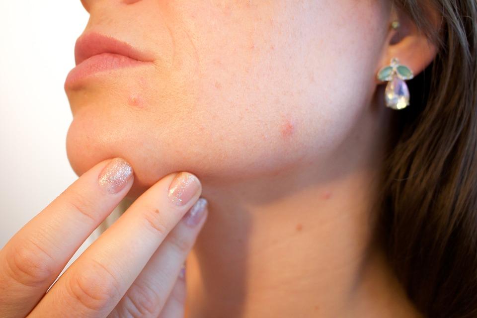 tip-para-curar-el-acne